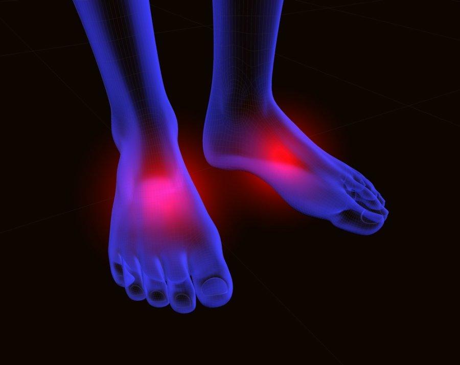ligos pėdos gydymas sąnarių artrozė artritas pirštų