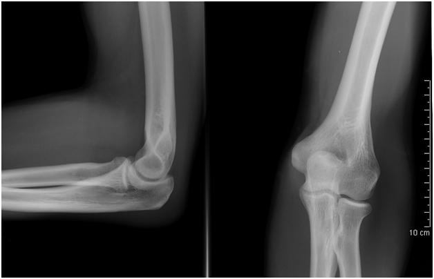 skausmas iš alkūnės sąnario raiščių artritas plaštakų rankas kas tai yra