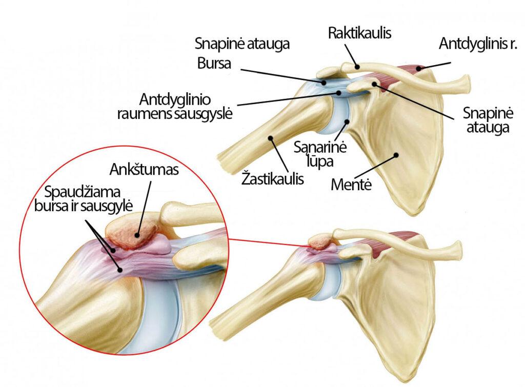 skausmas peties sąnario ir ką daryti jei pečių gerklės