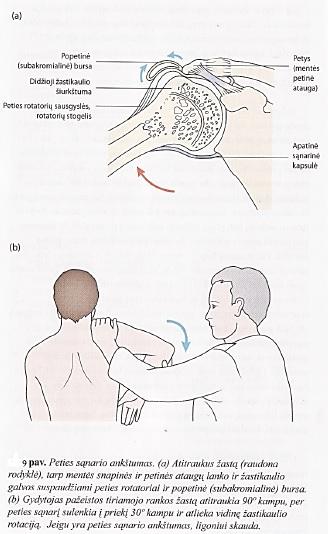 rankos kairiojo peties sąnarių rotatorių manžetės raumenys