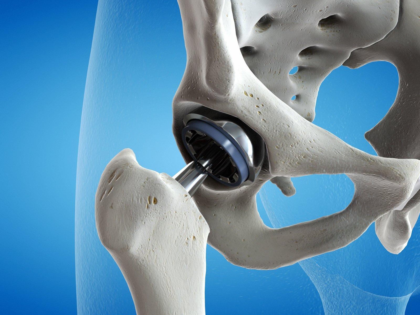 osteochondrozė sąnarių liaudies receptus gydymas kaip pašalinti edema dėl sąnarių pirštų