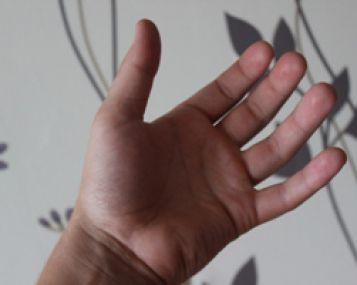 kodel deformuojasi pirstu sanariai skauda nykscio sanari