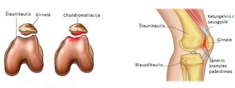 liga šlaunikaulio sąnarių pirmieji požymiai artritu ant rankų