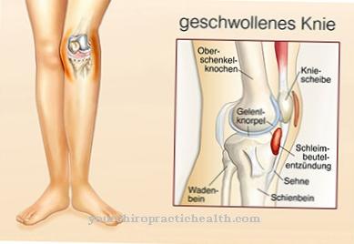uždegimas bendrą peties gelis iš artrozė kojų gydymas