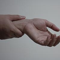 artritas iš peties sąnario dešininėms tabletes