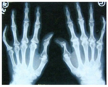 ūminis artrozė visų sąnarių eglės alyva sąnarių gydymo