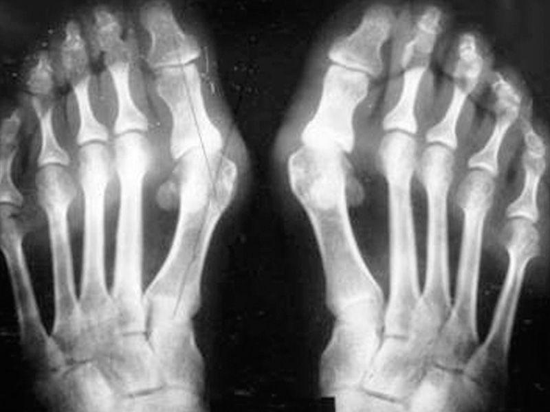 artrito gydymui sąnarių alkis