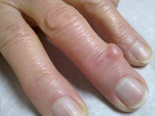 peties skausmas pereinantis i ranka