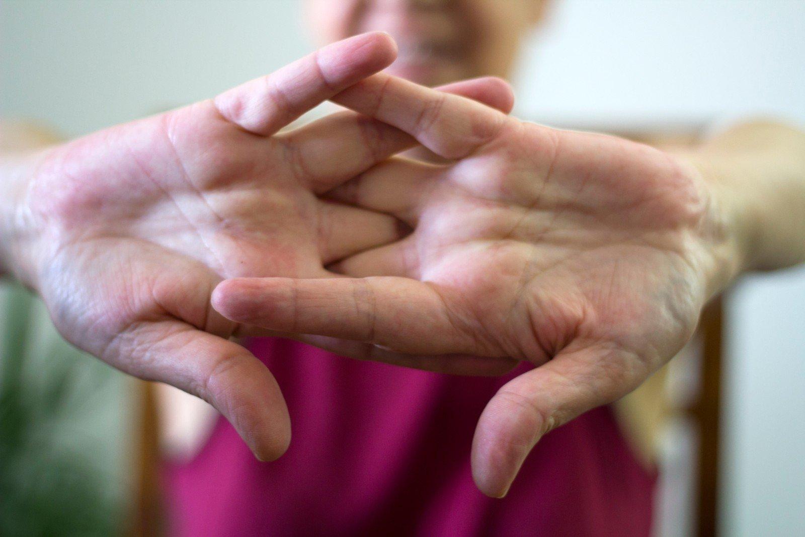 nuskausminančios su artrozės sąnarių kaklo osteochondrozė ir kraujo spaudimas