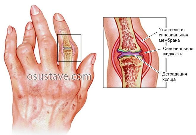 artrozė iš plus sustav tepalas
