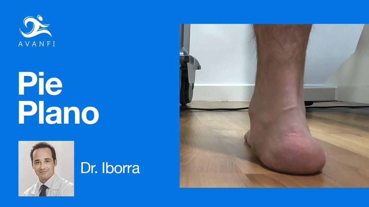artrozė 2 etapais artimuosiuose foot sustav osteoartrito nso