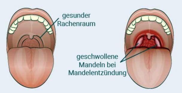 tonzilitas ir sąnarių skausmas