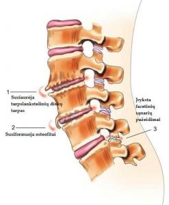 osteochondrozė prabangūs gydymas už kirksnies skausmas pereinantis i koja
