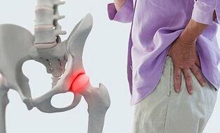 lotynų skausmas sąnario artroze