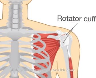 gydymas diagrama artrozės metu nooofen su sąnarių uždegimu