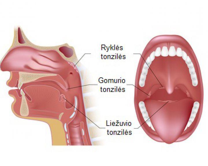 skauda dėl alkūnės sąnario tepalas į reumato ir sąnarių gydymas