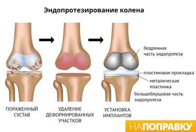 fizikines gydymas artrozės metu vaistai nuo klubo sanario skausmo