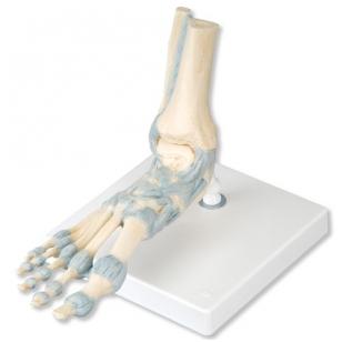 gerklės sąnariuose skeleto artrozė iš rankų riešo gydymo liaudies gynimo