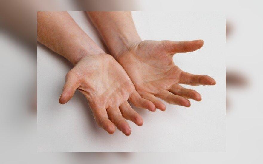 reumatoidinio artrito gydymo rekomendacijos