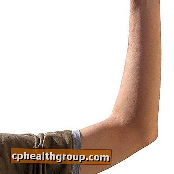 skausmas alkūnės išorėje surbing sąnarį nuo nykščio ant rankų