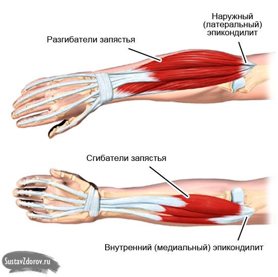 osteochondrozė iš alkūnės sąnario liaudies gynimo priemones perėjimas skausmo skausmo priežastis