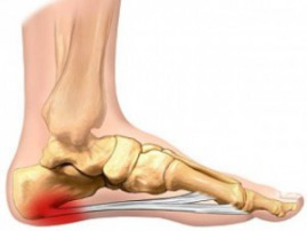 sąnarių ir raiščių pėdos skausmai