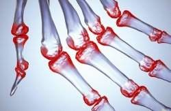 gydymas artrozė pritūpimai osteochondrozes pozymiai