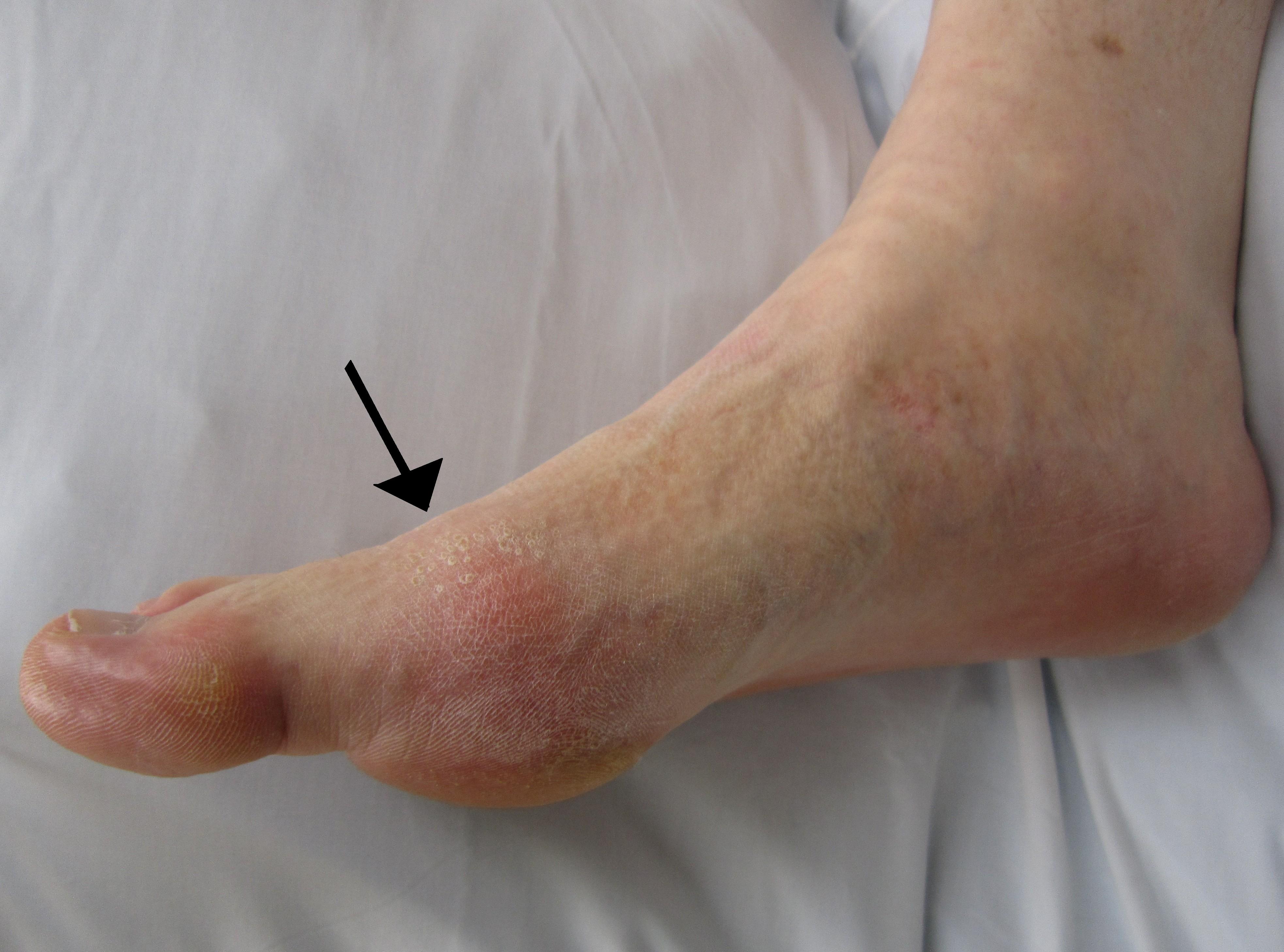 grietinėlės arba tepalas su bendrų ligų sunkusis kremas po traumos