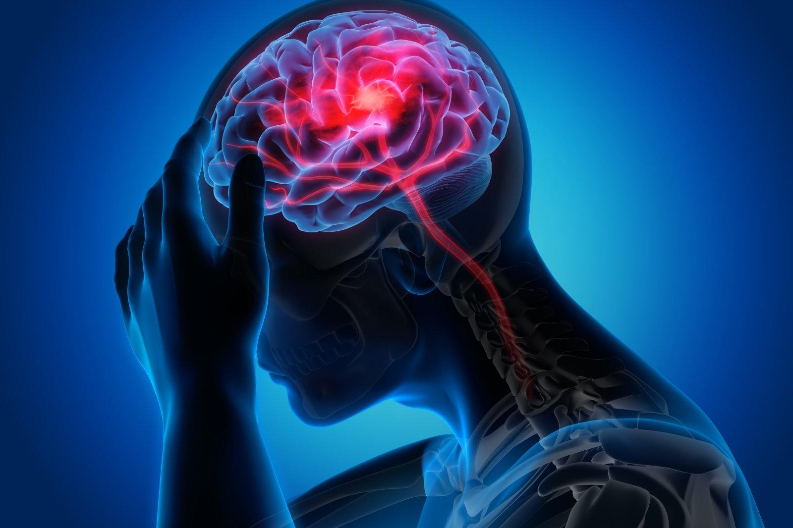tempimo sąnarių skausmą stiprus skausmas į petį sulyginti gydymas liaudies gynimo