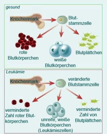 kokie tyrimai rodo leukemija peties bendras su skausmo