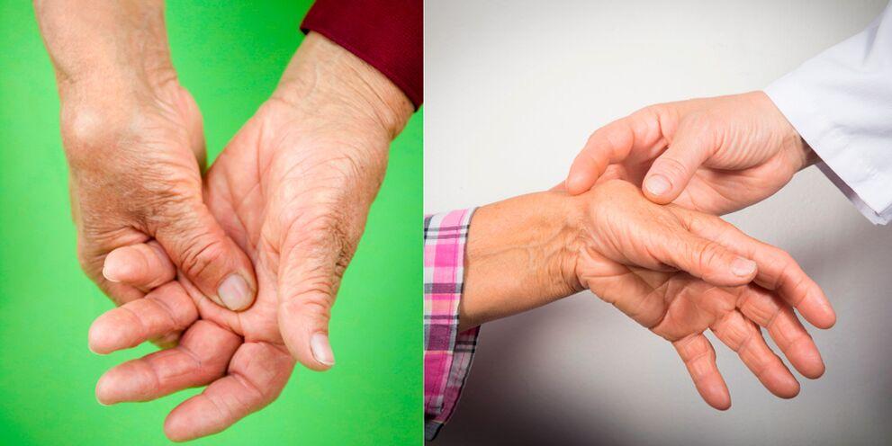 liaudies būdų gydyti artritas artrozės mazi receptas nuo sąnarių