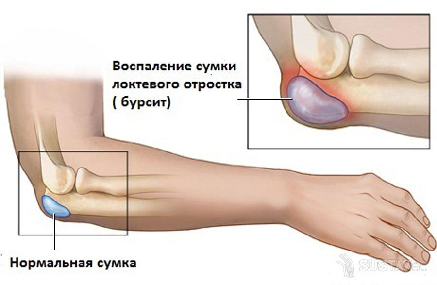 atleidimas iš alkūnės sąnario gydymo raumenų