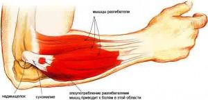ligos alkūnės sąnario pusės rankos skausmas sąnariuose