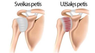 tinimas ligų sąnarių gydymas artrozės po kaulų lūžių