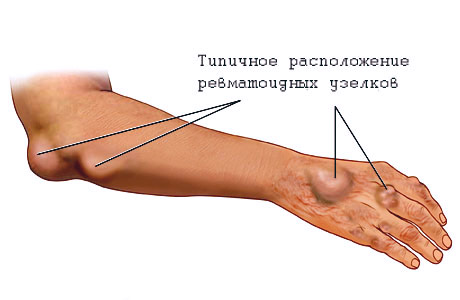 gydymas bendrą reumatizmo suaugusiems