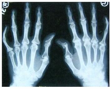 prevencija artrito ant rankų tabletės nuo sąnarių gydymas
