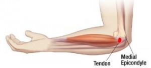 gydymas tempimas iš alkūnės sąnario raumenų