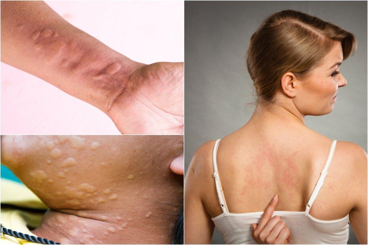 gydymas apatinės nugaros dalies skausmo ir sąnarių skausmas