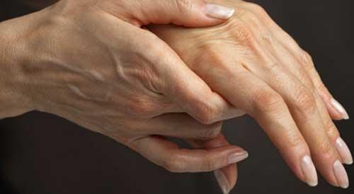 skysčio kaupimasis alkūnės sąnario gydymo