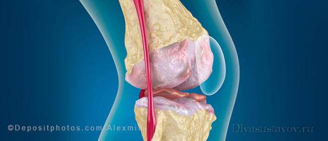 pakuotės tabletes su bendrų skausmai artrozės artritas didelių pirštų