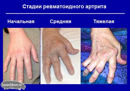 reumatoidinis artritas yra bendra