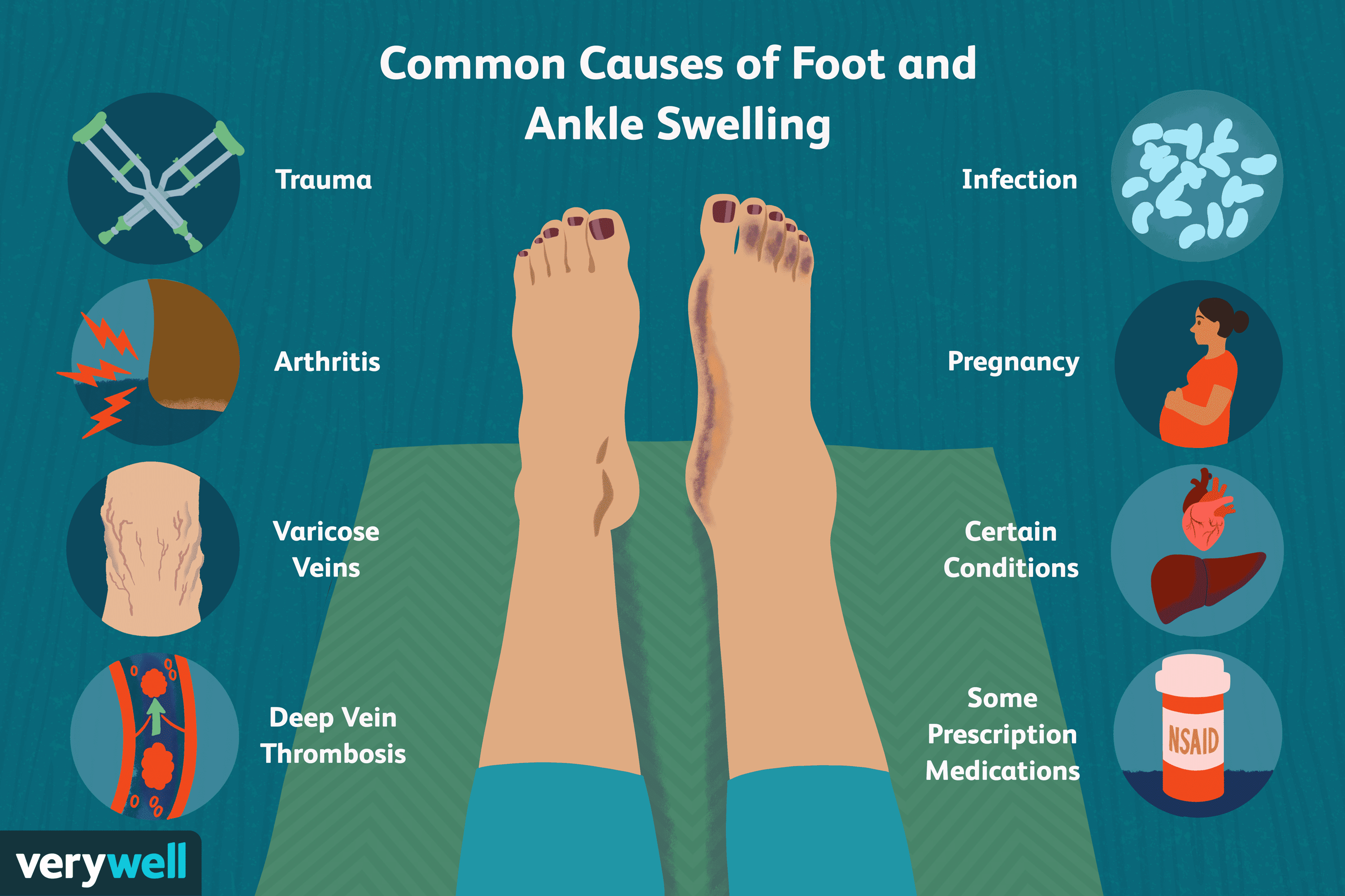 swollen painful joints in feet