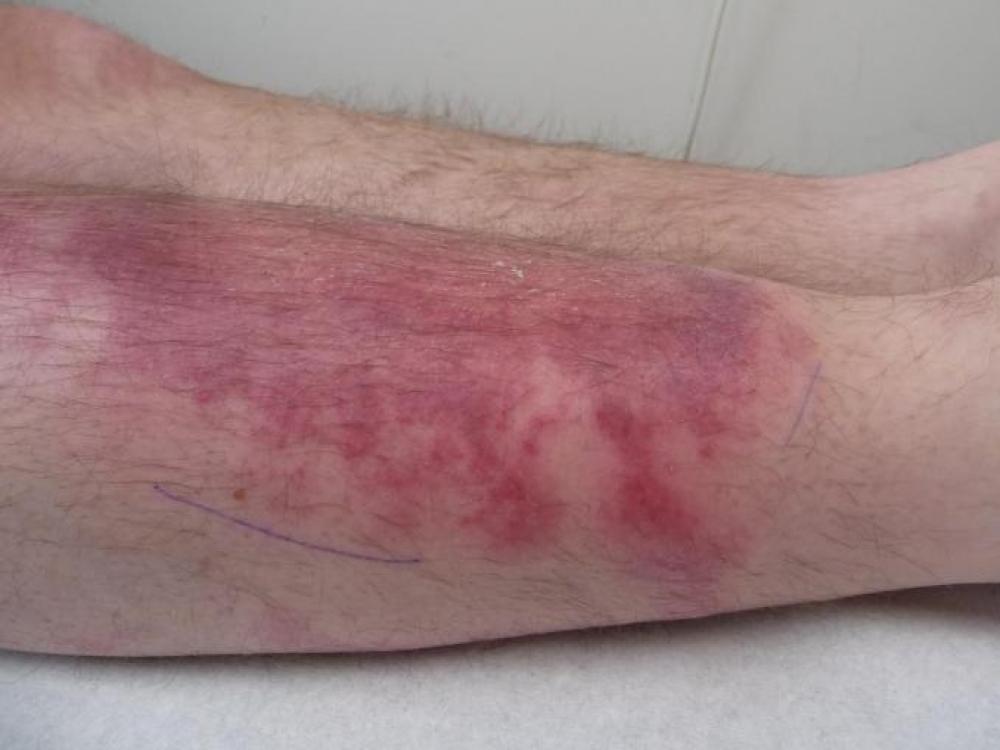 gydymas osteoartrito iš piršto sąnarių liaudies gynimo artrozė gydymas sąnarių skausmas