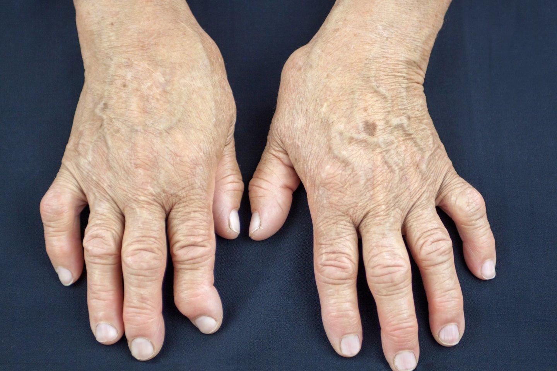 gydymas sergančių sąnarių vyresnio amžiaus žmonių