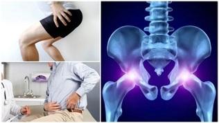 skauda šlaunies ką daryti sąnarius sąnarių skausmas gydymas bruceliozės