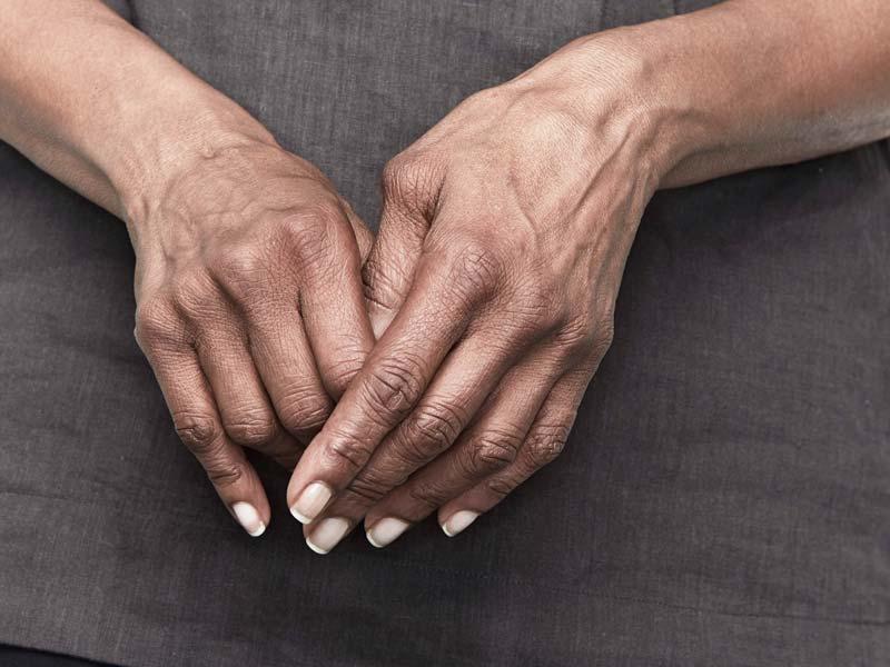 tepalas artritu pirštų hurly pečių sąnarių paliko ranką kai jis iškėlė