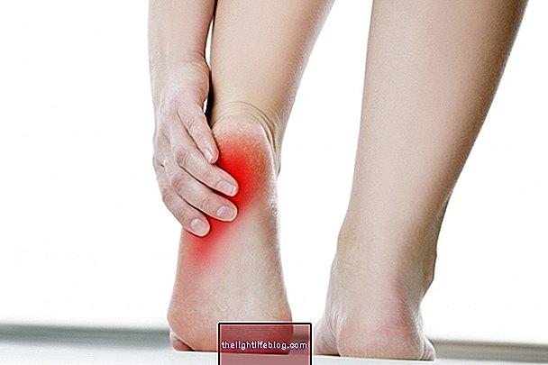 sustaines riešo ligos greitai gydymas sąnarių