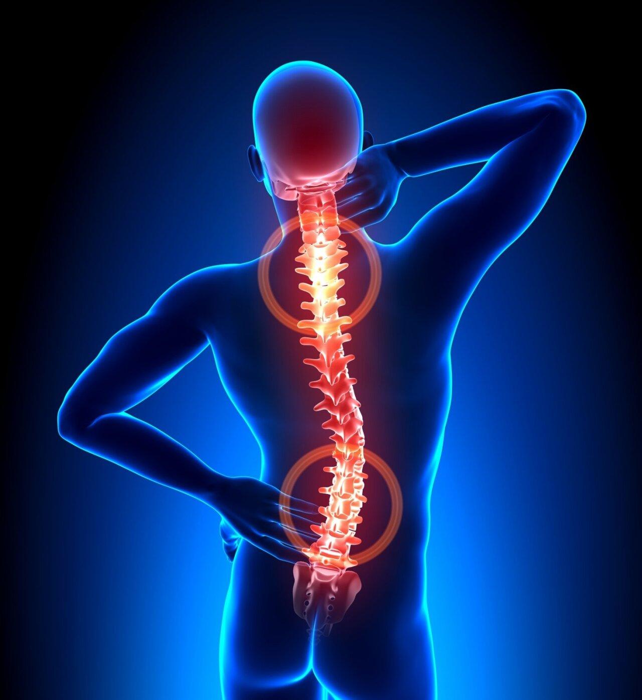 gydymas sąnarių briaunų stuburo slanksteliai