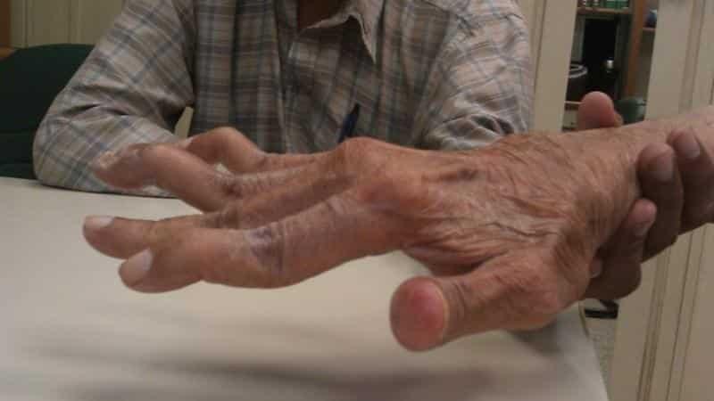 stiprus skausmas rankoje sąnarių kanapiu tepalas sanariams