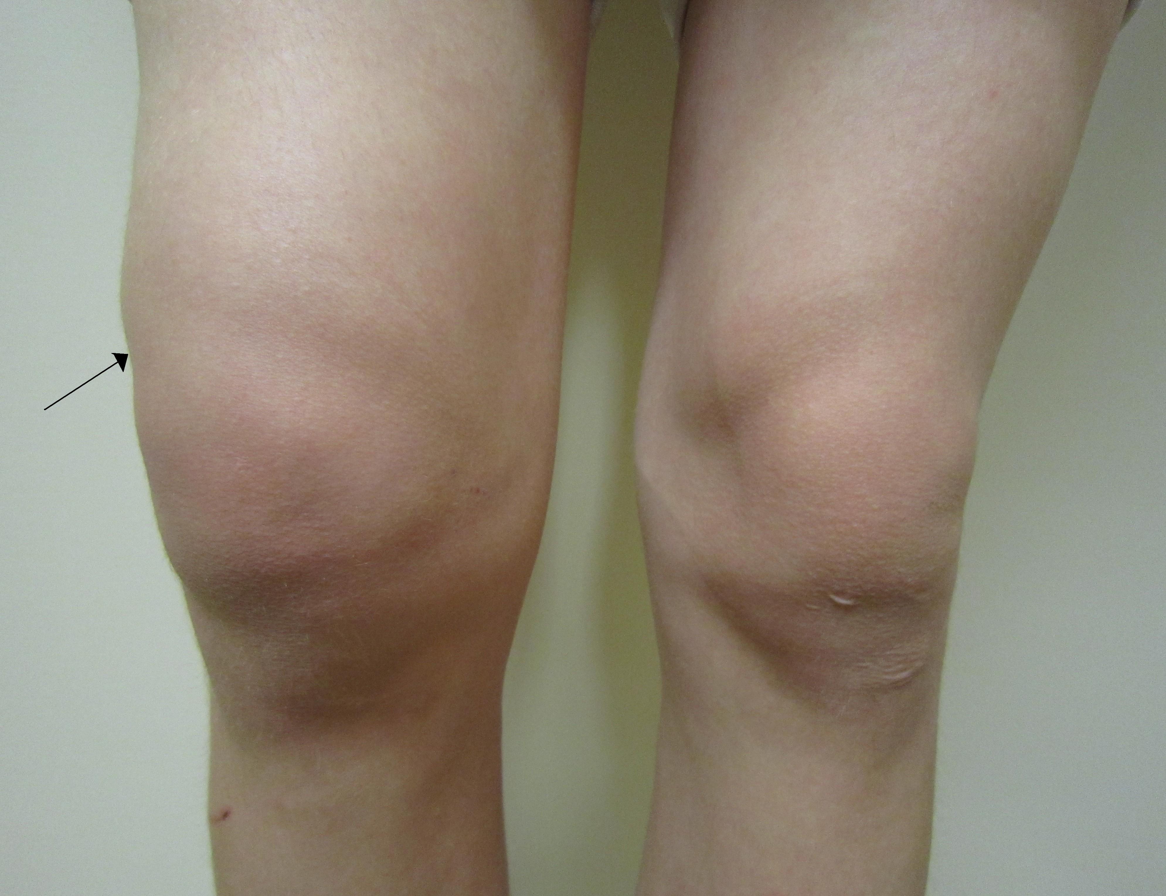 edema in joint gydymas kmynų aliejus sąnarius